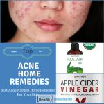 Best Acne Natural Home Remedies