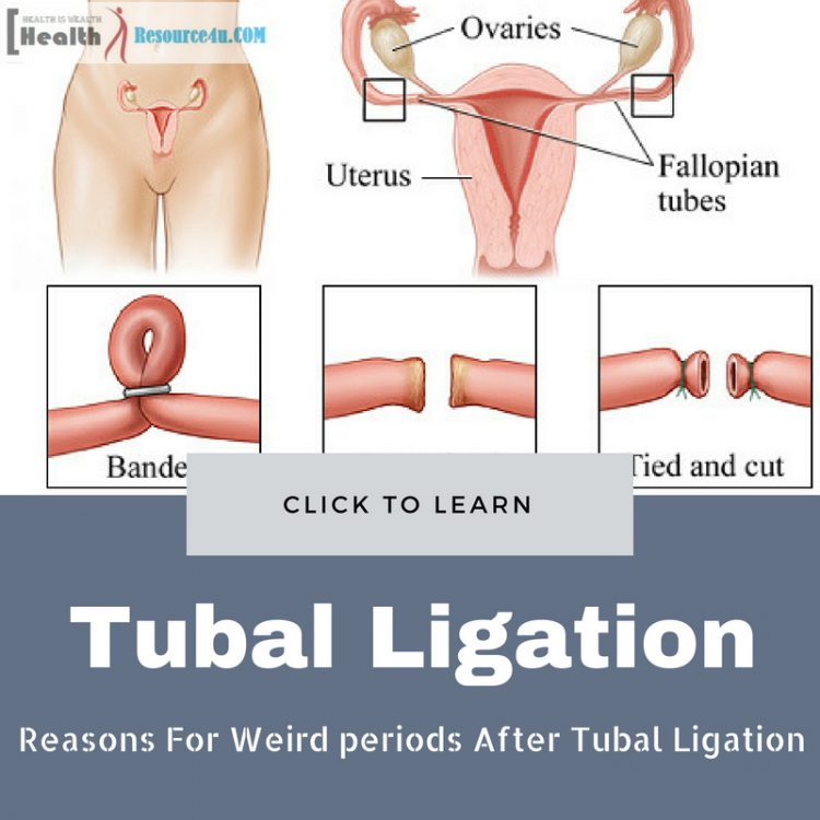 Weird periods After Tubal Ligation
