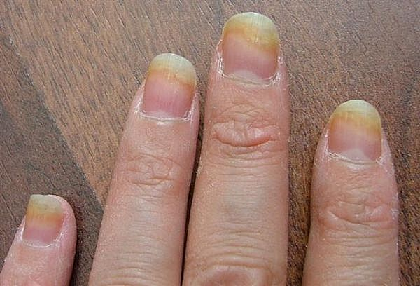 Fingernail Fungus : Causes, Picture, Symptoms and Treatment