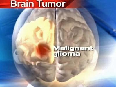 Glioma Tumor