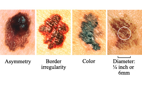 melanoma skin cancer Different Types of Skin Cancer and Its Treatments