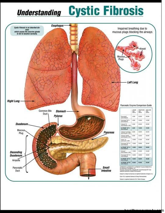 Cystic Fibrosis Symptoms