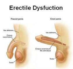 Erectile Dysfunction pictures