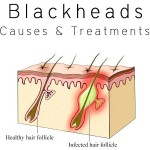blackheads treatments causes