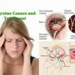 Migraine Headache: Causes, Pictures, Symptoms and Medications