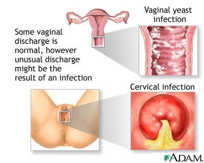 Cure for inner vaginal inflammation