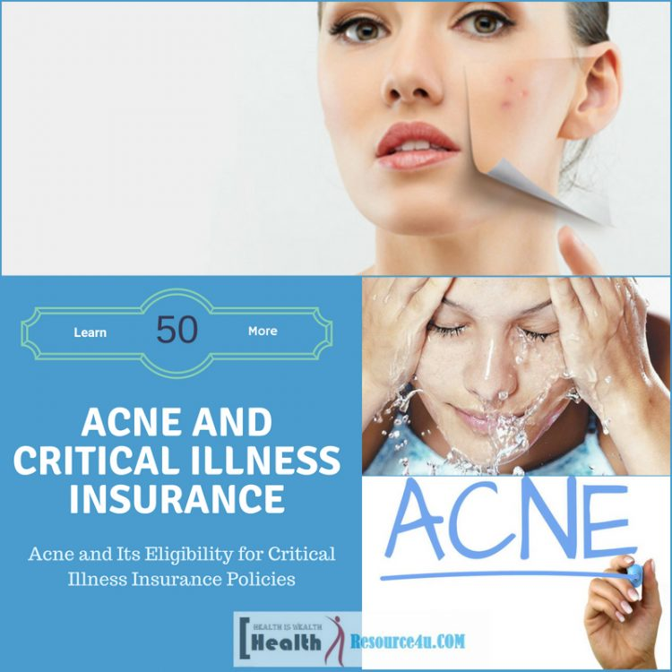 Acne and Critical Illness Insurance