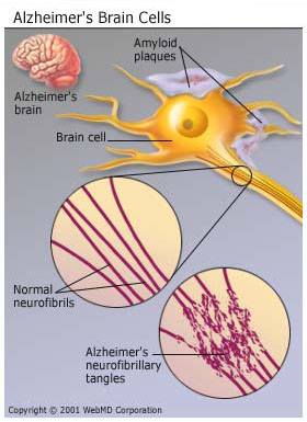 CAUSES OF ALZHEIMER DISEASE