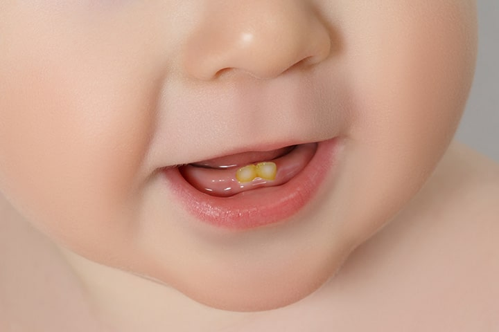 Dental Fluorosis in Babies