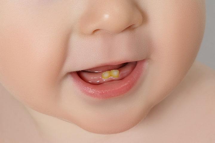 Dental Fluorosis in Babies