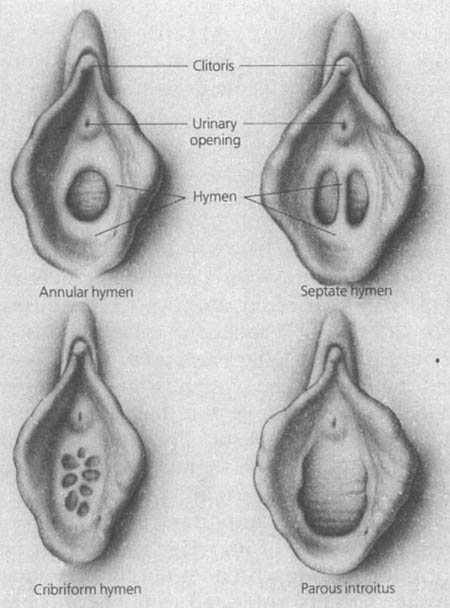 Different types of hymen