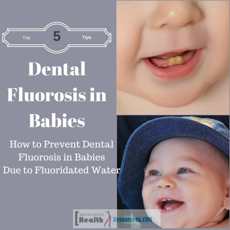 Fluoridated Water May Cause Fluorosis in Babies