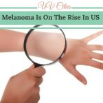 Melanoma Is On The Rise In US