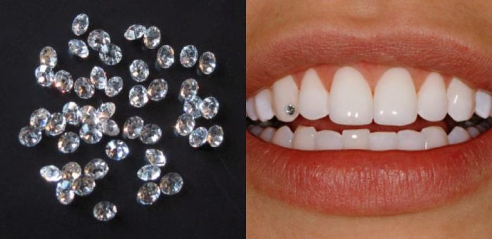 Tooth Jewelry Procedure