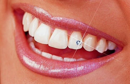 Tooth Jewelry and Dentistry
