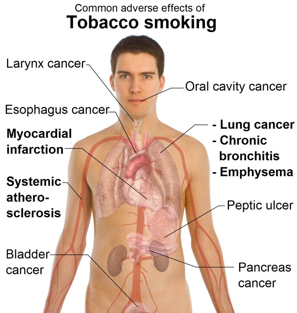 smoking effects