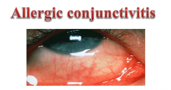 Allergic Conjunctivitis : Causes, Symptoms, Treatment and ...
