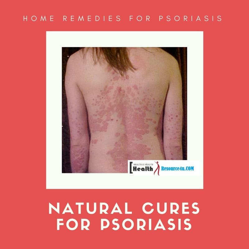 Best Natural Cures For Psoriasis Symptoms