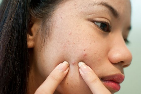 Causes of Bad skin