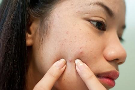 Causes of Bad skin