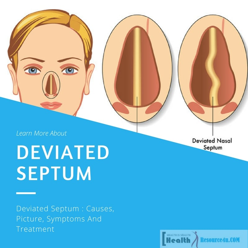 Deviated Septum : Causes, Picture, Symptoms And Treatment