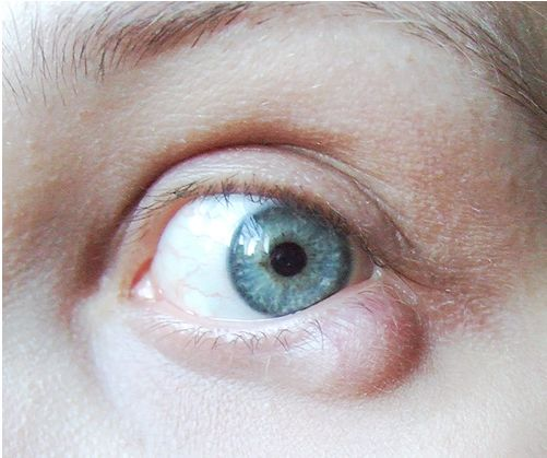 What are the symptoms of eyelid cysts?