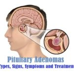 Pituitary Adenomas : Types, Signs, Symptoms and Treatment