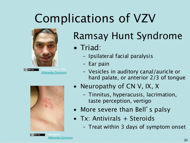 Ramsay Hunt Syndrome complications