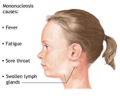causes-of-Glandular-fever
