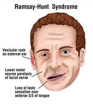 ramsay-hunt-syndrome-pictures