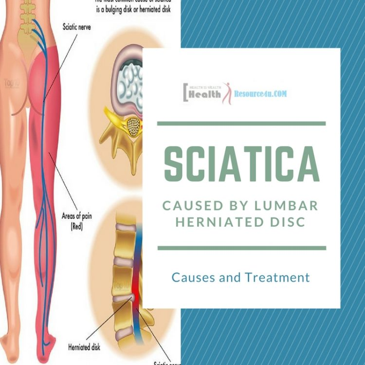 Sciatica from Lumbar Herniated Disc
