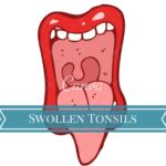 Swollen Tonsils cause and treatment