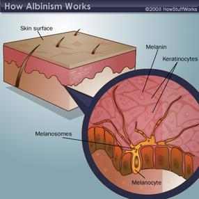 albinism characteristics and symptoms causes and treatments Albinism information including symptoms, diagnosis, misdiagnosis, treatment, causes, patient stories, videos, forums, prevention, and prognosis.