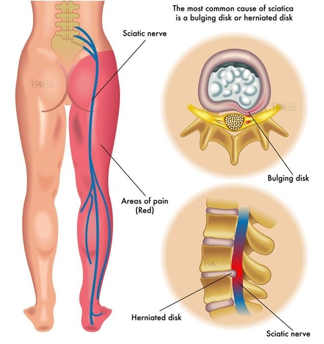 Prevention of Sciatica Caused by Herniated Disc: