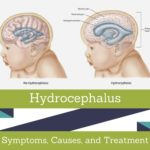 hydrocephalus Symptoms, Picture, Causes, and Treatment