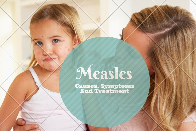 Measles Rash Causes, Symptoms And Treatment