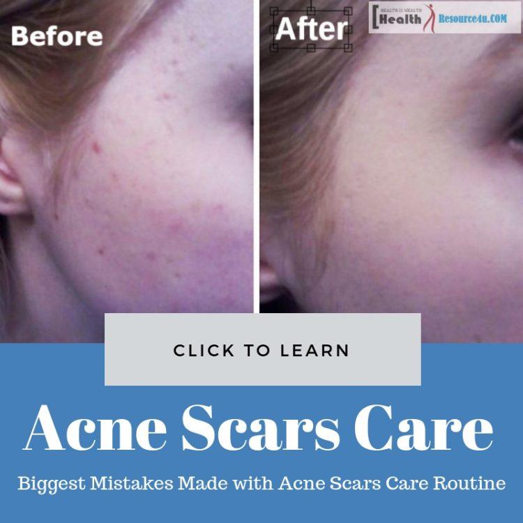 Acne Scars Care Routine