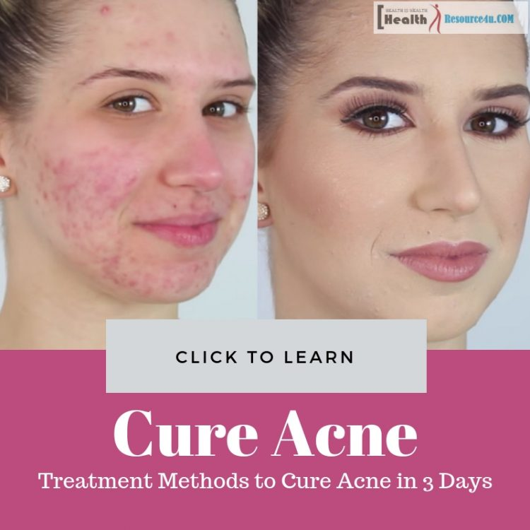 Cure Acne in 3 Days