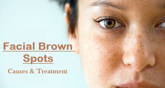 Facial Brown Spots - Causes, Picture, Symptoms And Treatment