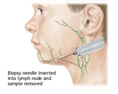 Lymph-Node-Locations-2