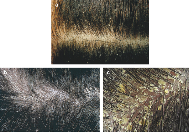 Dandruff Cure Treatment