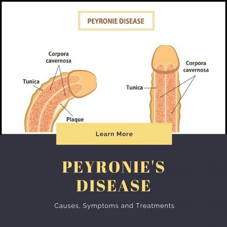 Peyronie's Disease: Causes, Symptoms and Treatment