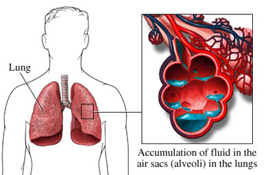 Pulmonary Edema treatment
