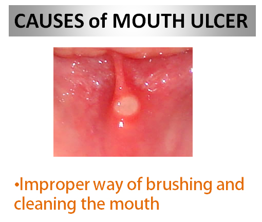 Causes of Mouth Ulcer small