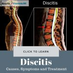 Discitis Causes and Treatment