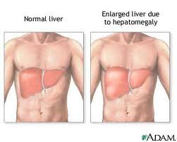Enlarged Liver or hepatomegaly Picture