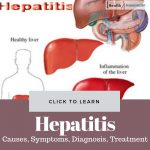 Hepatitis Causes Treatment