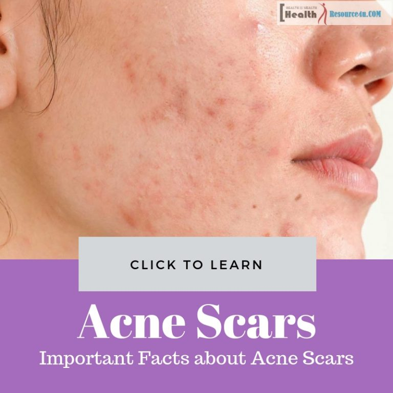 Important Facts about Acne Scars