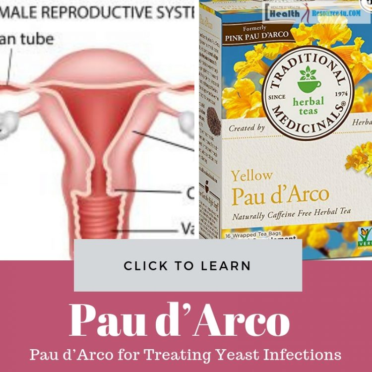 Pau d'Arco for Treating Yeast Infections