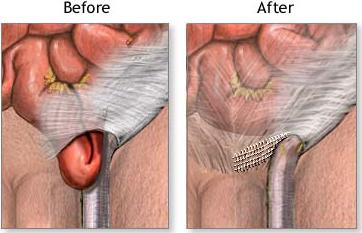 Inguinal Hernia - Causes, Pictures, Symptoms And Treatment